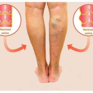 normal-varicose veins